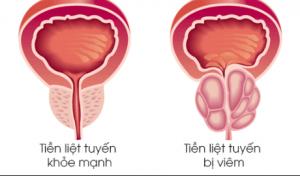 Viêm tuyến tiền liệt: Nguyên nhân, triệu chứng và các biện pháp điều trị