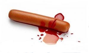 Bao quy đầu bị chảy máu