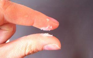 Bao quy đầu có nhiều bựa trắng có phải mắc bệnh gì không?