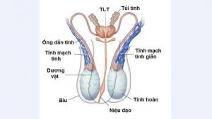 Giãn mạch thừng tinh - căn bệnh nguy hiểm của phái mạnh